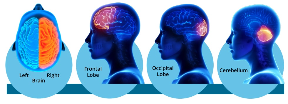 PI and brain activation